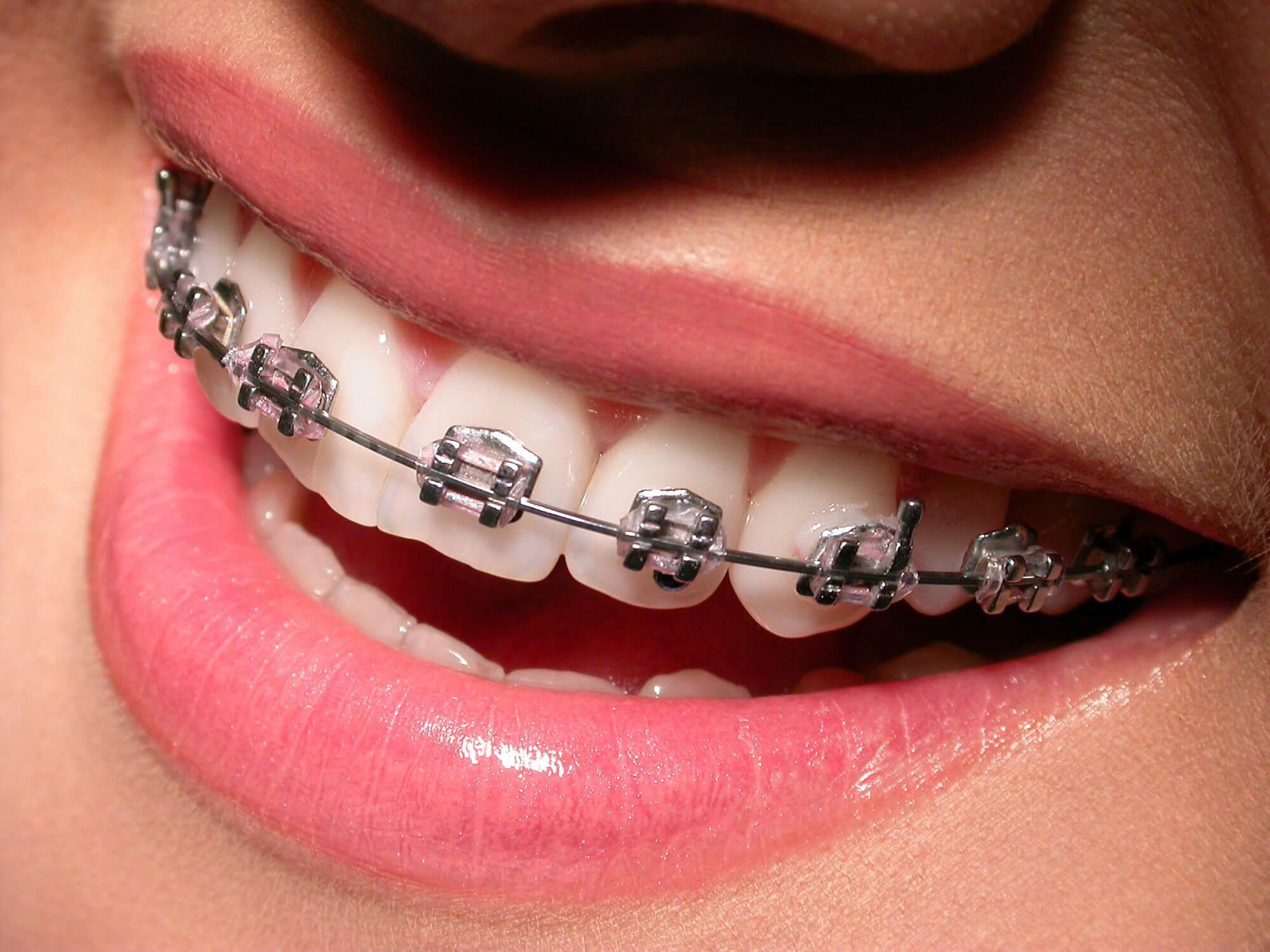 ortodontiya-1