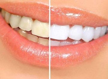 lazernaya-chistka-zubov